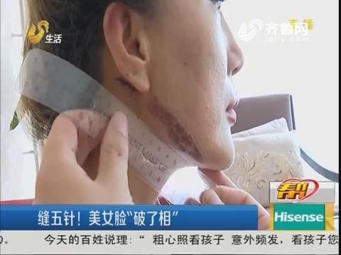 """潍坊:缝五针!美女脸""""破了相"""""""