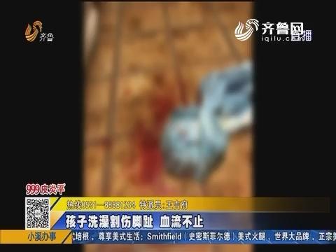 【青岛】求助:游客入住酒店 孩子割伤脚趾