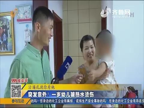 禹城:突发意外!一岁幼儿被热水烫伤