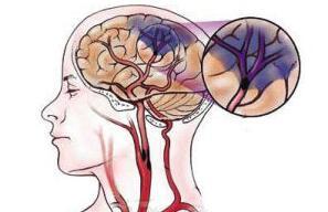 脑卒中的细微表情
