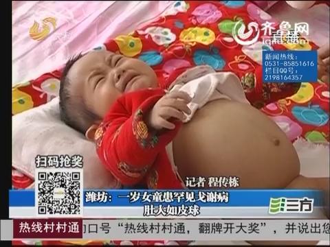 潍坊:一岁女童患罕见戈谢病 肚大如皮球