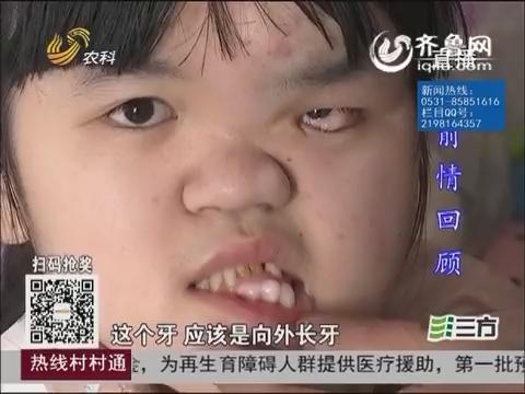 """【三方帮您办】临沂:""""变形女孩""""来济南手术了"""
