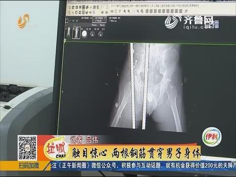 淄博:触目惊心 两根钢筋贯穿男子身体