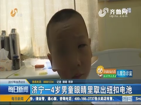 济宁一4岁男童眼睛里取出纽扣电池