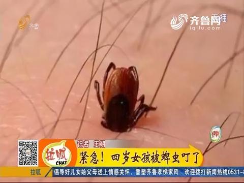 济南:紧急!四岁女孩被蜱虫叮了