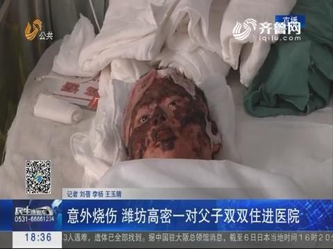 意外烧伤 潍坊高密一对父子双双住进医院