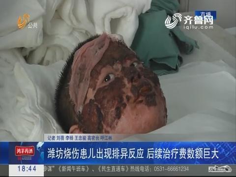 潍坊烧伤患儿出现排异反应 后续治疗费数额巨大