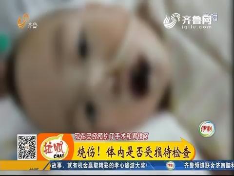 济宁:揪心!一岁半男童误食火碱