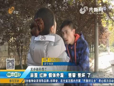 """济宁:鼻歪 红肿 假体外露 整容""""整坏""""了?"""