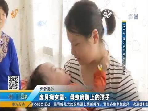 宠贝病女童:母亲肩膀上的孩子