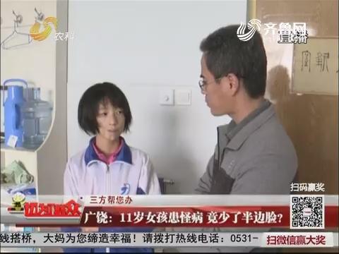 【三方帮您办】广饶:11岁女孩患怪病 竟少了半边脸?
