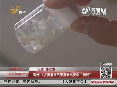 """滨州:4岁男童支气管里长出要命""""树枝"""""""