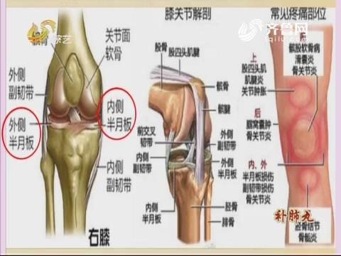 """20171128《世医堂家有大中医》:膝关节疼痛的""""防治指南"""""""