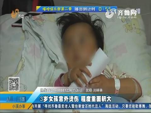 济南:3岁女孩意外烫伤 程度重面积大