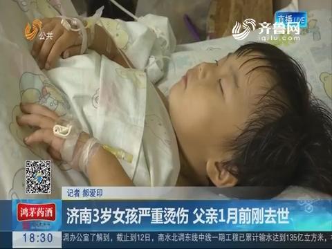 济南3岁女孩严重烫伤 父亲1月前刚去世