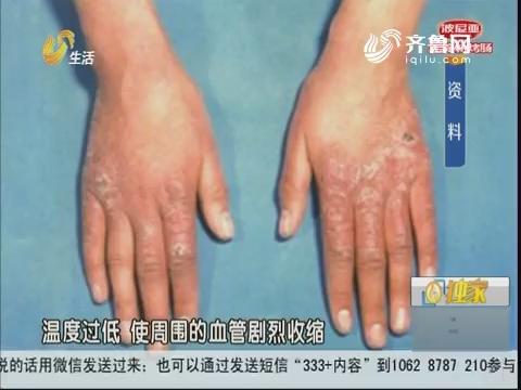 济南:提醒!低温持续 警惕冻伤