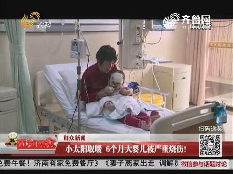 【群众新闻】小太阳取暖 6个月大婴儿被严重烧伤!