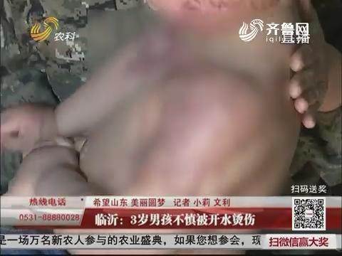 【希望山东 美丽圆梦】临沂:3岁男孩不慎被开水烫伤