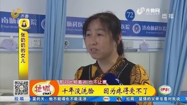 济南:十年没洗脸 因为疼得受不了