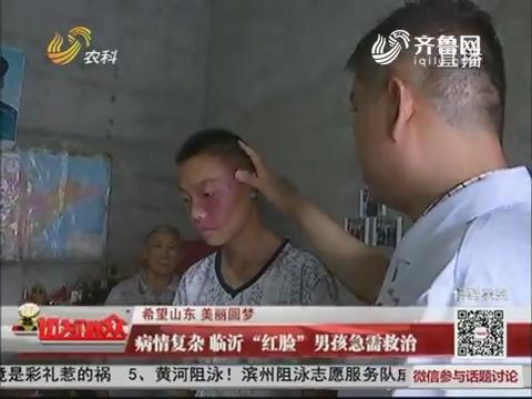 """【希望山东 美丽圆梦】病情复杂 临沂""""红脸""""男孩急需救治"""