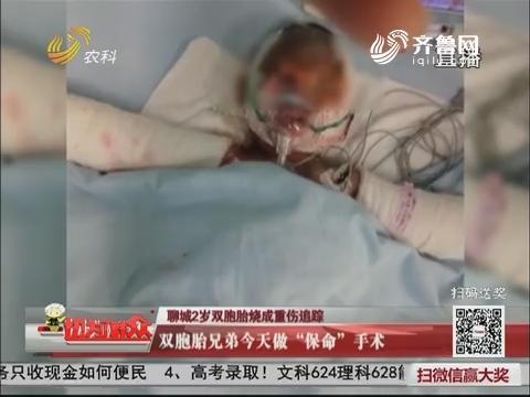 """聊城2岁双胞胎烧成重伤追踪:双胞胎兄弟7月20日做""""保命""""手术"""