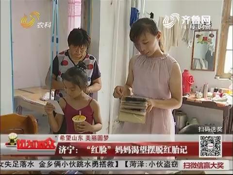 """【希望山东 美丽圆梦】济宁:""""红脸""""妈妈渴望摆脱红胎记"""