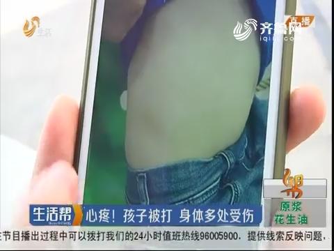 济南:心疼!孩子被打 身体多处受伤