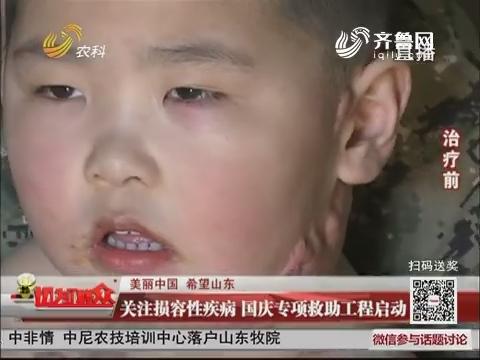 【美丽中国 希望山东】关注损容性疾病 国庆专项救助工程启动