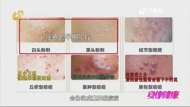 20180912《身体健康》:脸上冒痘痘是怎么回事?