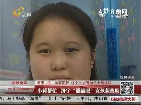 """【希望山东 美丽圆梦】小莉帮忙 济宁""""熊猫眼""""女孩获救助"""