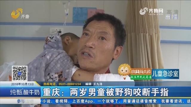 重庆:两岁男童被野狗咬断手指