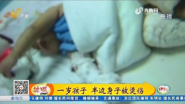 东平:一岁孩子 半边身子被烫伤
