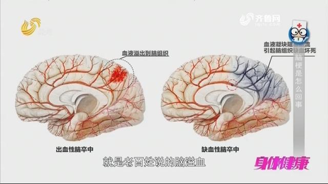 20181108《身体健康》:脑梗是怎么回事