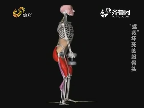"""20181118《名医话健康》:名医戴国峰——""""拯救""""坏死的股骨头"""