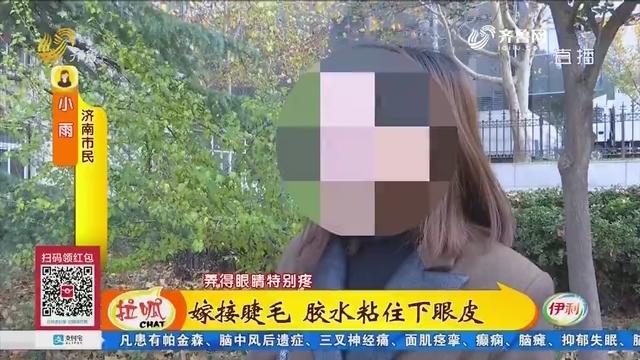 济南:嫁接睫毛 胶水粘住下眼皮