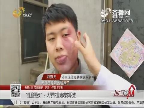 """【希望山东 美丽圆梦】""""红脸男孩"""":大学毕业遭遇求职难"""