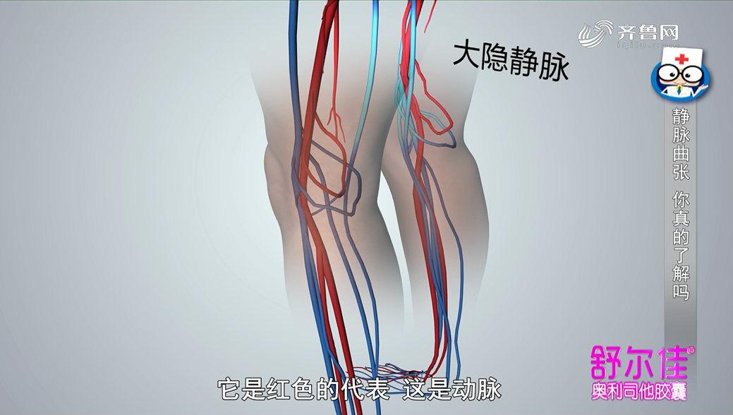 《身体健康》:静脉曲张到底是怎么回事?