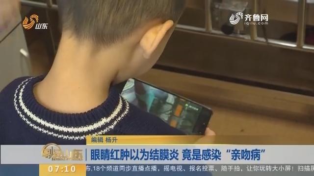"""【闪电新闻排行榜】眼睛红肿以为结膜炎 竟是感染""""亲吻病"""""""