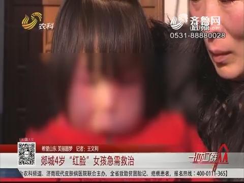 """【希望山东 美丽圆梦】郯城4岁""""红脸""""女孩急需救治"""