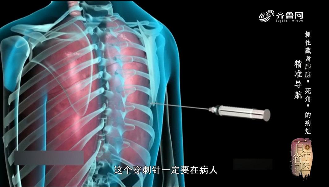 《身体健康》:经皮肺穿刺怎么做