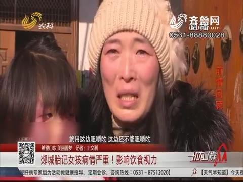 【希望山东 美丽圆梦】郯城胎记女孩病情严重!影响饮食视力