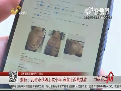 烟台:20岁小伙脸上祛个痘 竟背上两笔贷款