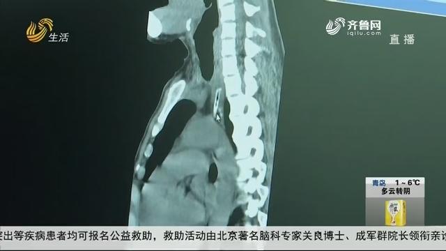 淄博:骨头卡喉 女子吃肉后胸口疼痛?