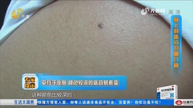 2019年01月28日《生活大调查》:用手抠痣会引发癌变吗?
