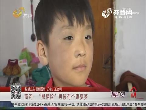 """【希望山东 美丽圆梦】商河:""""熊猫脸""""男孩有个康复梦"""