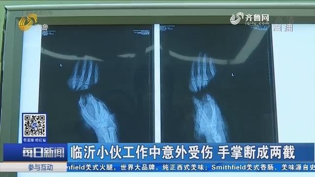 临沂小伙工作中意外受伤 手掌断成两截
