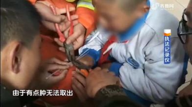 潍坊:求助!男孩戴戒指 取不下来了