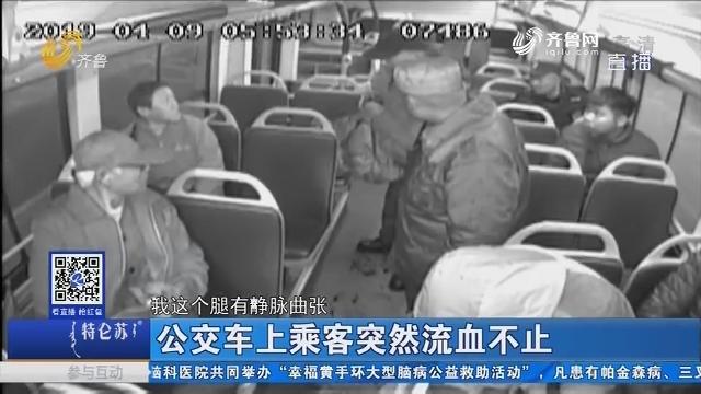 济南:公交车上乘客突然流血不止