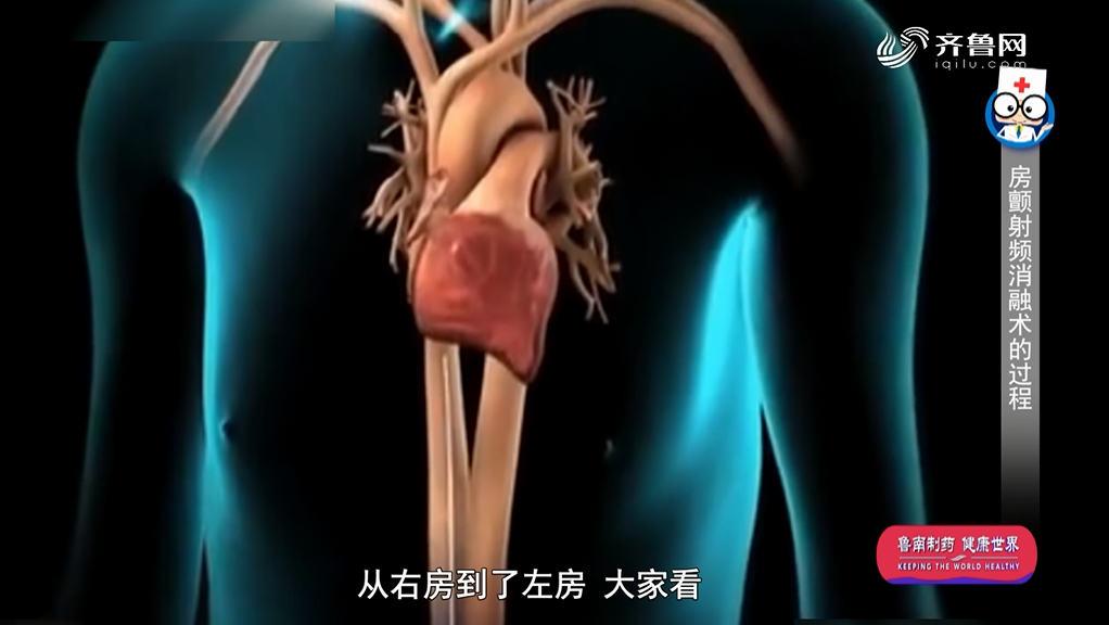 《身体健康》:房颤的射频消融原理