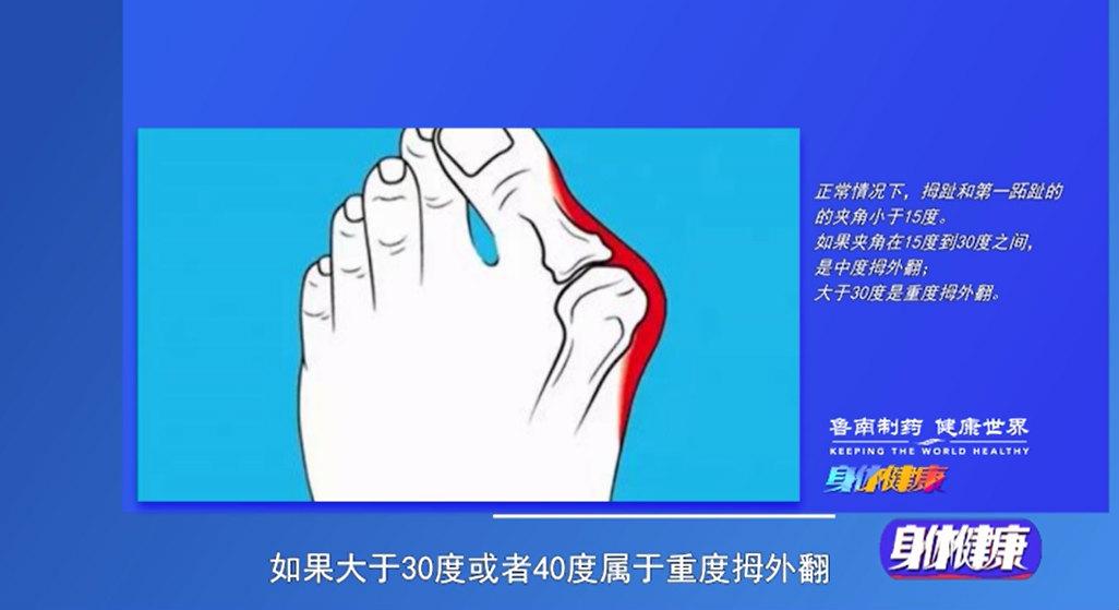 《身体健康》:拇外翻是怎么回事?